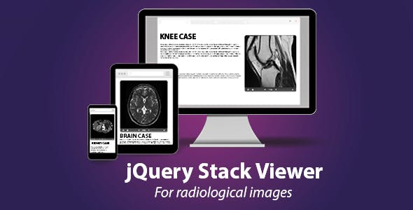 jQuery Stack Viewer